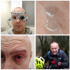 """So having #keratoconus in the rain and mud isn't good, grit in the eye and subsequently tearing my lens was very painful. Added to the fact my """"better"""" lenses don't work either, I'm a bit annoyed to say the least!"""
